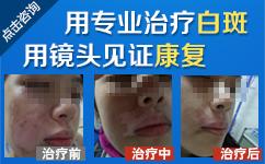 沈阳市有治疗白癜风的医院吗?